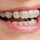 יישור שיניים אינויזליין